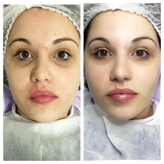 limpeza de pele antes e depois rosto